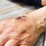 Sanovnik rana – Šta znači sanjati ranu?
